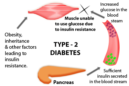type 2 diabetes, type ii diabetes symptoms and treatment, Skeleton